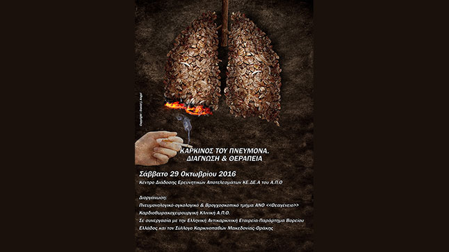 LUNG CANCER, DIAGNOSIS AND TREATMENT