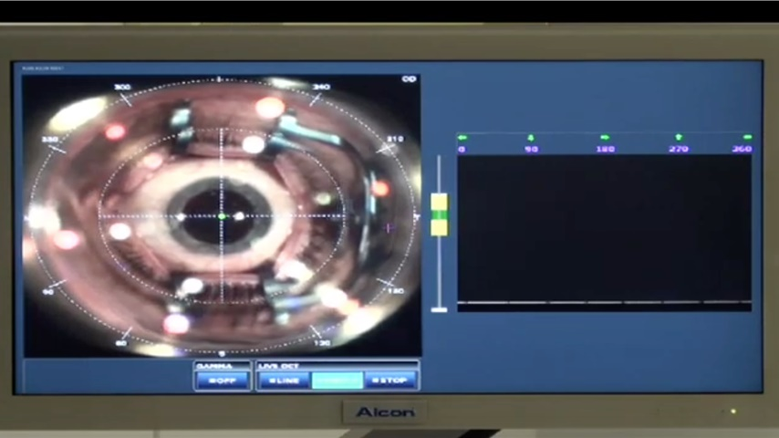 Femtosecond laser assisted cataract surgery with LenSx and Centurion Phacomachine 01