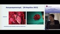 Κ.Τσακιρίδης | Σύμπλοκο περιστατικό χειρουργικής αντιμετώπισης στεφανιαίας νόσου