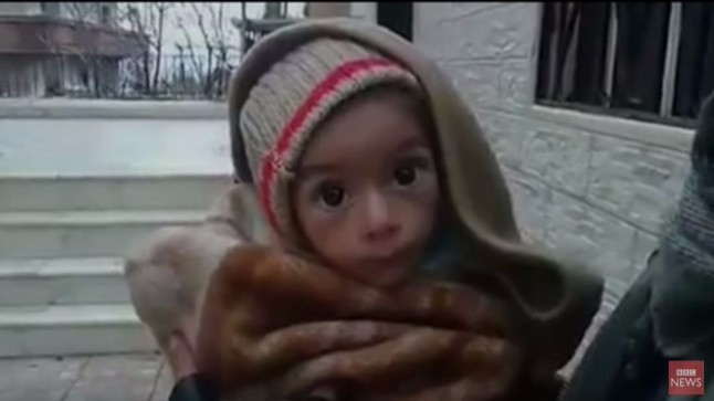Φρίκη από τα αποστεωμένα παιδάκια στη Συρία