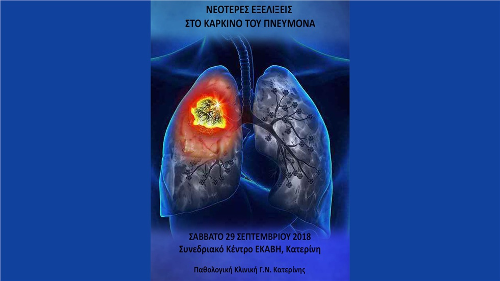 Newer developments in lung cancer