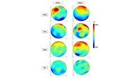 Μελέτη ΑΠΘ-ΕΚΕΤΑ  μπορεί να συμβάλει στην έγκαιρη διάγνωση της...